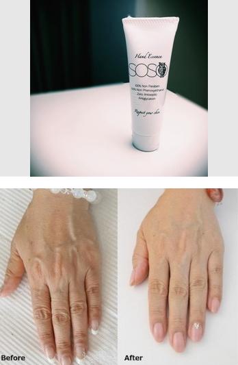 「手の病院」はスベスベ艶々の手肌へ導く手のエイジングケアに特化したメニュー